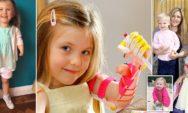 متلازمة الشريط السلوي: بسبب عيب خلقي في يدها اصبح الناس يلقبونها بالطفلة الخارقة