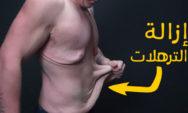 طرق لشد الجلد المترهل بعد فقدان الوزن
