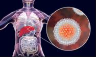 """حقائق يجب أن تعرفها عن التهاب الكبد الوبائي أو الفيروسي """"C"""" !"""