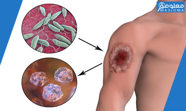 تعريف مرض اللشمانيا في السعودية .. اعراض مرض الليشمانيا الجلدية والحشوية  ..