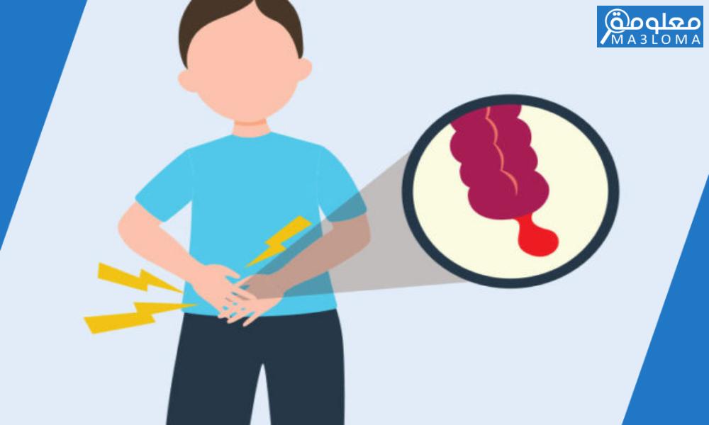 اسباب التهاب الزائدة الدودية عند الشباب