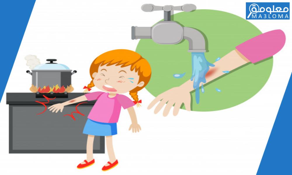 كيف تتصرف اذا انسكب ماء ساخن على احد افراد عائلتك لا قدر الله
